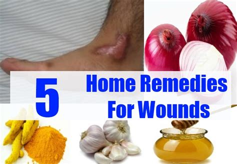 wounds home remedies treatments and cure usa