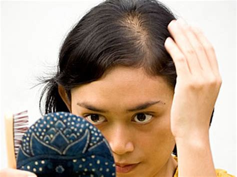 hair cuts to disguise hair loss many women with hair loss suffer in silence altering