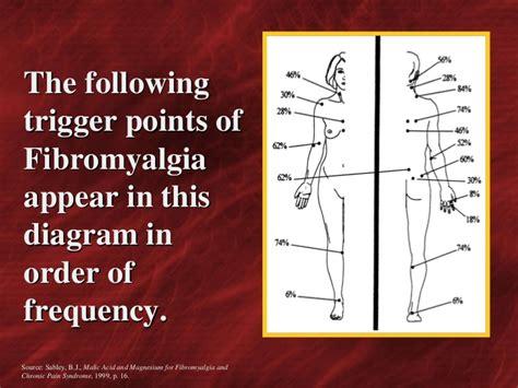 pressure points fibromyalgia diagram points of fibromyalgia diagram fibromyalgia