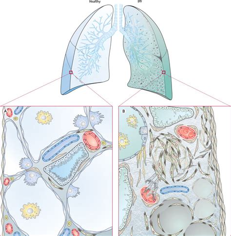 idiopathic pulmonary fibrosis the lancet new cellular and molecular mechanisms of lung injury and