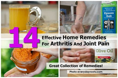 14 home remedies for arthritis and joint