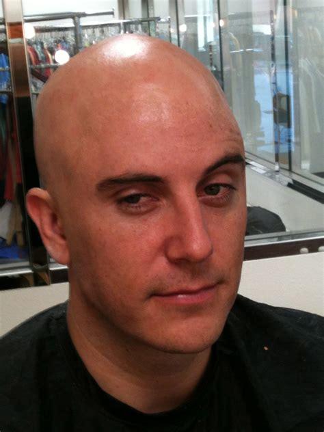 Was Balding by Bald Caps Ralis Kahn
