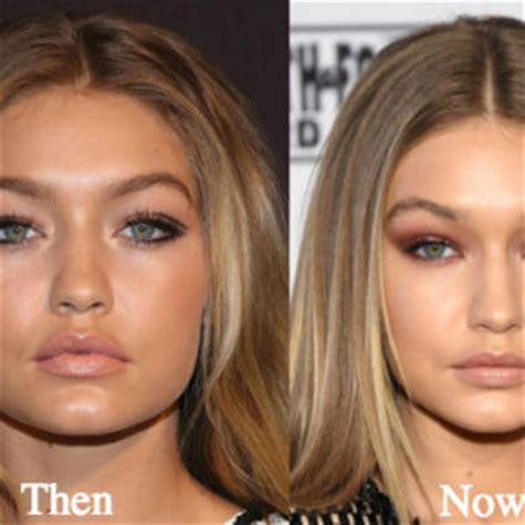 gigi hadid lip injections patricia arquette plastic surgery before and after photos