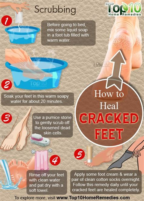 how to a to heal how to heal cracked top 10 home remedies