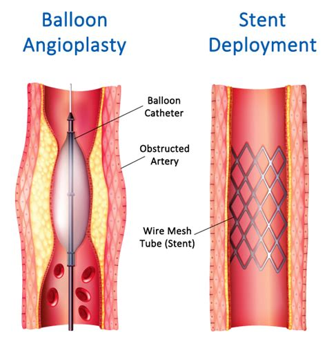 blocked arteries and open surgery carotid artery surgery in ta fl to help prevent stroke