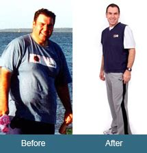 weight management bupa weight loss viva wellness