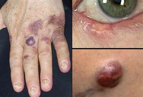 sunshineandhealthcare  warning signs  skin cancer