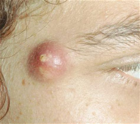 tattoo infection cyst cyst on face sebaceous pictures won t pop infected