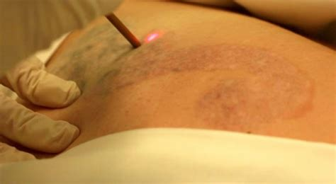 how to get rid of a tattoo you can get rid of that using modern laser