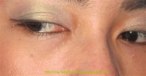 Eyeshadow Ristra let s talk about health of the day lime