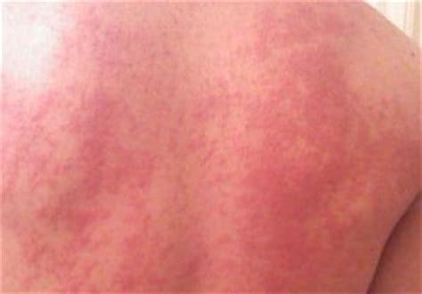 imagenes de manchas rojas en los brazos tipos de manchas de la piel mundo asistencial