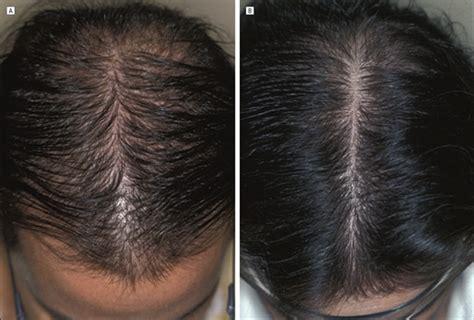 ludwig pattern hair loss finasteride treatment of female pattern hair loss jama