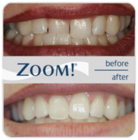 dental works lincoln park mi 1 hour in office zoom