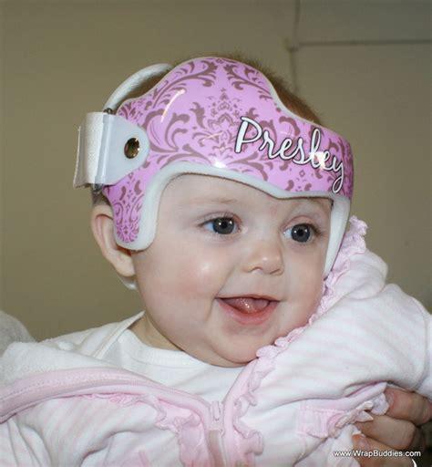 helmet design for babies plagiocephaly torticollis doc band baby helmet