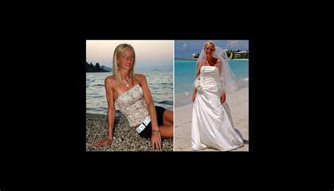 imagenes impactantes de anorexia y bulimia 161 impactantes casos estas 10 mujeres sufrieron anorexia