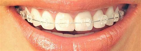 comfort dental braces loveland comfort dental orthodontics 28 images comfort dental