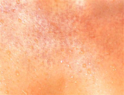 conseil dermatologie soleil et peau sensible protection