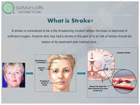 stroke treatment stroke treatment and cure stem cell treatment for stroke