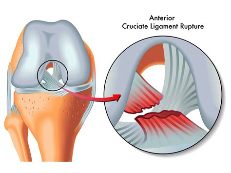 acl surgery cost knee ligament surgery guide acl costs treatments medigo