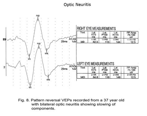 pattern reversal evoked potentials webvision the electroretinogram clinical applications
