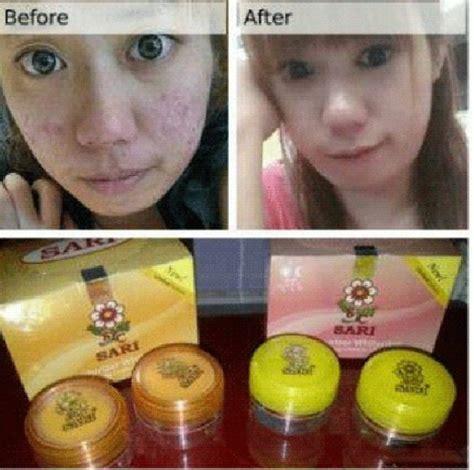 Pemutih Wajah Temulawak Asli review sari pemutih wajah asli jual kosmetik