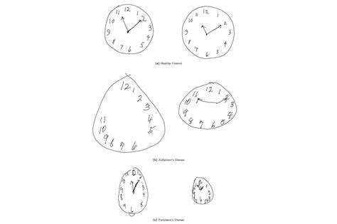 clock drawing test clock drawing test mit sloan school of management