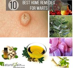 home remedy for warts 10 effective and best home remedies for warts