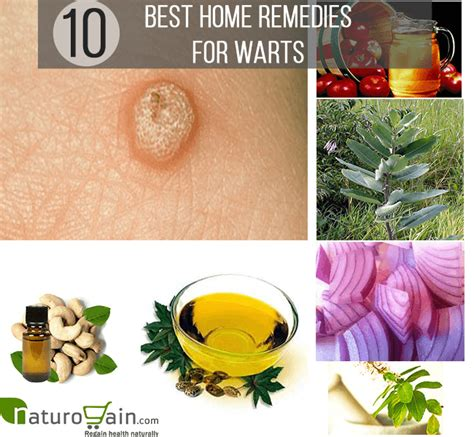 10 effective and best home remedies for warts