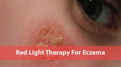 led light therapy for eczema light therapy eczema decoratingspecial com