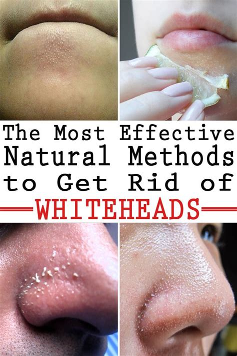 how to get rid of blackheads whiteheads zits acne fast 25 best ideas about whitehead removal on pinterest