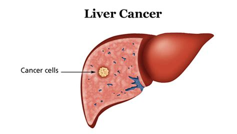 liver cancer why and when to do liver cancer test