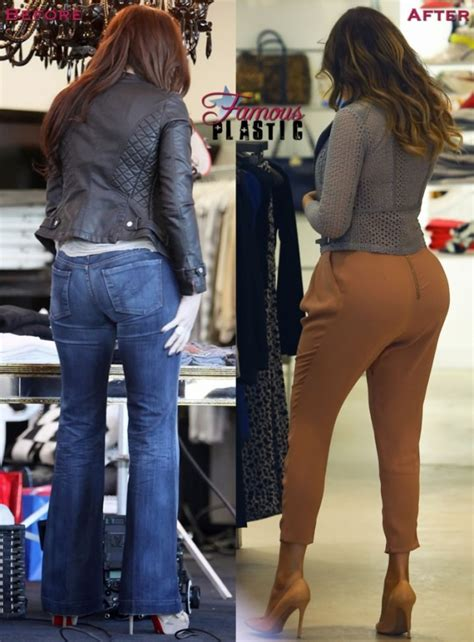 kardashian sisters butt implant photos did kim khloe kylie did khloe kardashian get butt implants experts weigh in