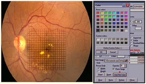 grid pattern laser photocoagulation full text subthreshold diode laser micropulse