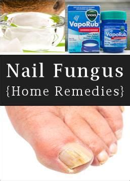 home remedies for toenail fungus mix 1 4 c listerine any