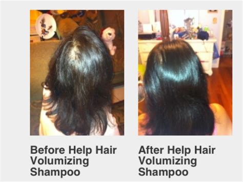 hair shops who work with thin balding hair in chicago shoo for thinning hair thinning hair shoo how to