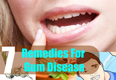 7 home remedies for gum disease treatments