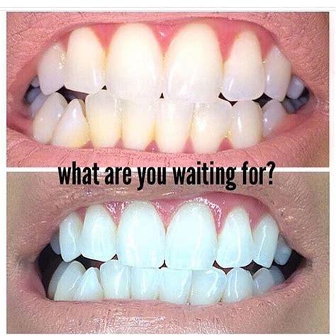 7 Day Teeth Whitening Detox by 7 Best Smile Enhance 7 Day Detox Teeth Whitening Kit