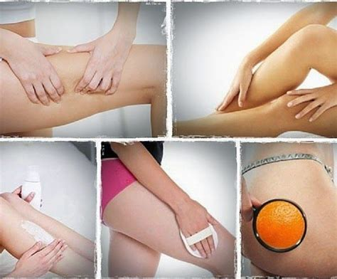Cellulite 101 Definition And Cause by Best 25 What Causes Blackheads Ideas Only On