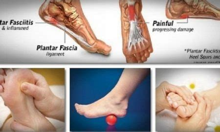 how to treat and prevent plantar fasciitis at home top