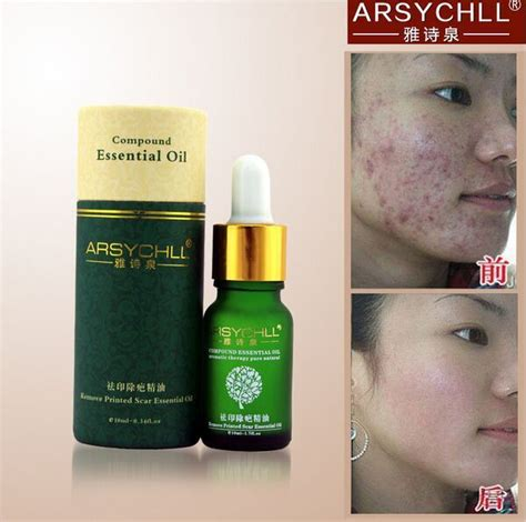 Aliexpress Com Buy Scar Removal Lavender Essential Oil | face care arsychll essential oils acne scar removal cream