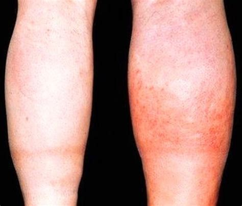 blood clot in leg symptoms and treatment