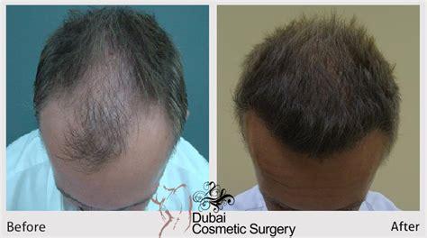 gautam gambhir hair transplant gautam gambhir hair transplant related keywords gautam