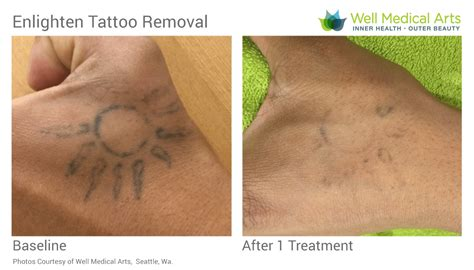 will tattoo removal get better removal in seattle using pico technology at well