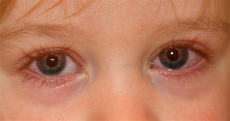symptoms of pink eye conjunctivitis causes treatment and symptoms pinkeye