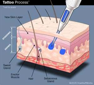 7 factors determining the success of a tattoo removal