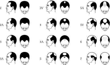types of hair lines male pattern hair loss or androgenetic alopecia stop