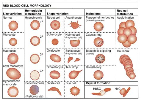 blood film morphology quiz summary of abnormal red blood cell morphologies and