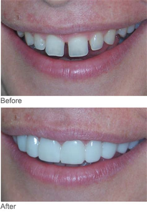 diastema myles williams dds atlanta dental arts