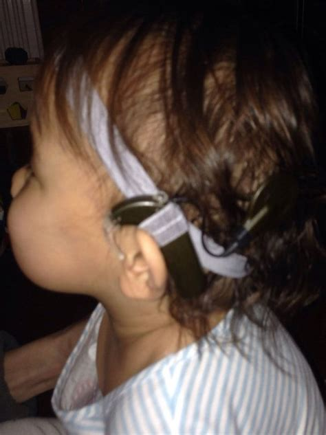 getting a perm with a baba hearing implant can i 17 best ideas about hearing implants on pinterest deaf