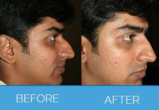 surgical nose reshaping nose correction nose job
